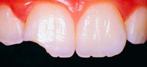 Зубы стали стеклянными