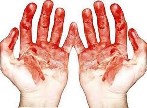 Кровь на руках