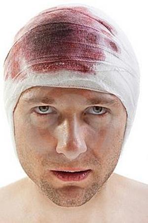 Кровь на голове