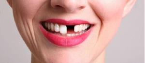 Выпадение зуба