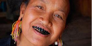 Чёрные зубы