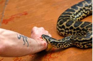 Змея укусила за руку