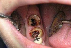 Гнилой зуб