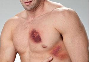 Синяки в области груди