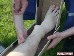 Сломанная нога