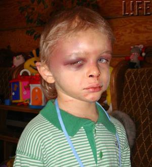Избитый мальчик