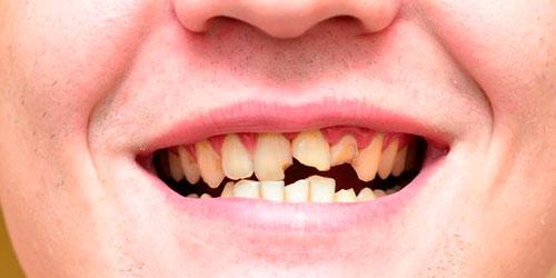 Крошатся почти все зубы
