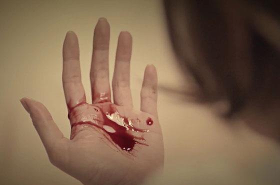 Кровь на ладони