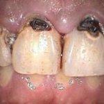 Разбираемся по соннику, к чему снятся гнилые зубы