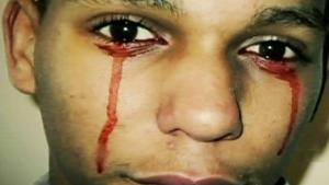 Кровь из глаз