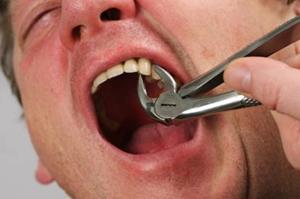 Вырвал зуб