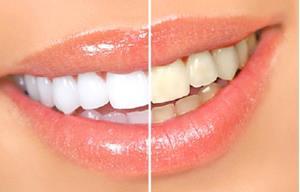 Зубы до и после чистки