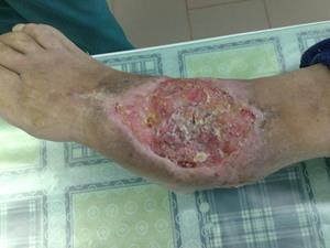 Воспалительное заболевание