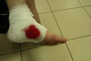 Ранение ноги осколками