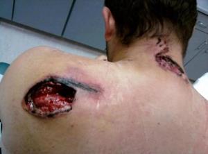 Осколочное ранение